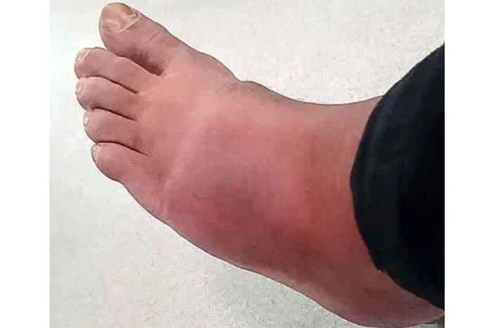 reza-foot