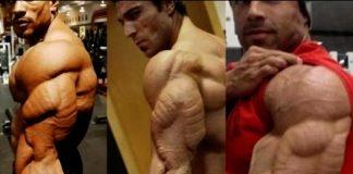 Best Triceps