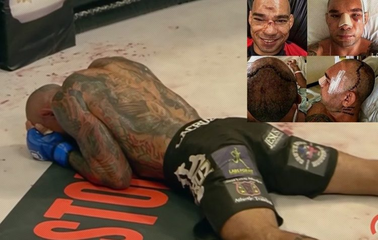 MMA Knockout Of The Year