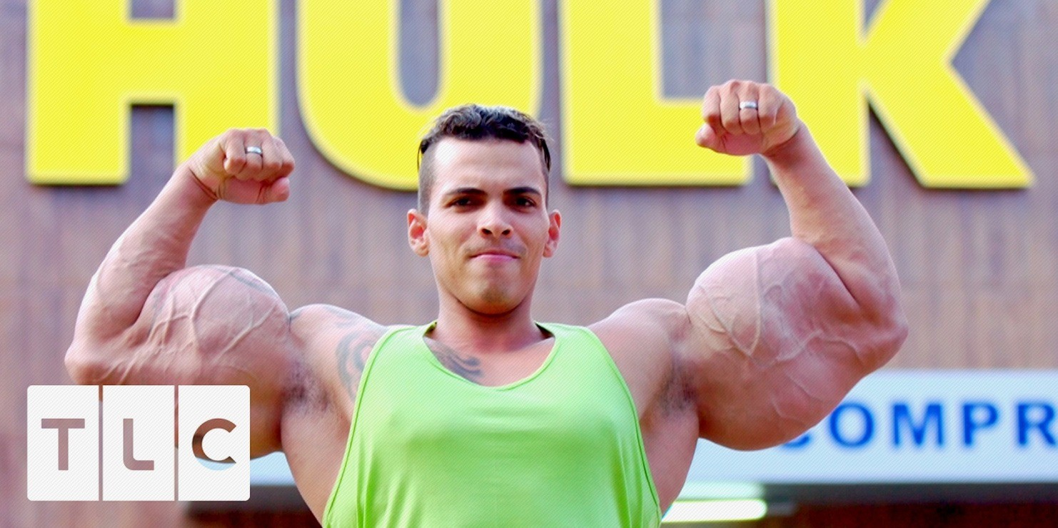 WATCH: New Documentary on Synthol Abusers – Do These Guys Even Lift?
