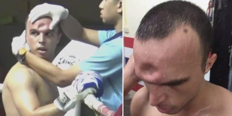 Muay Thai fighter skull
