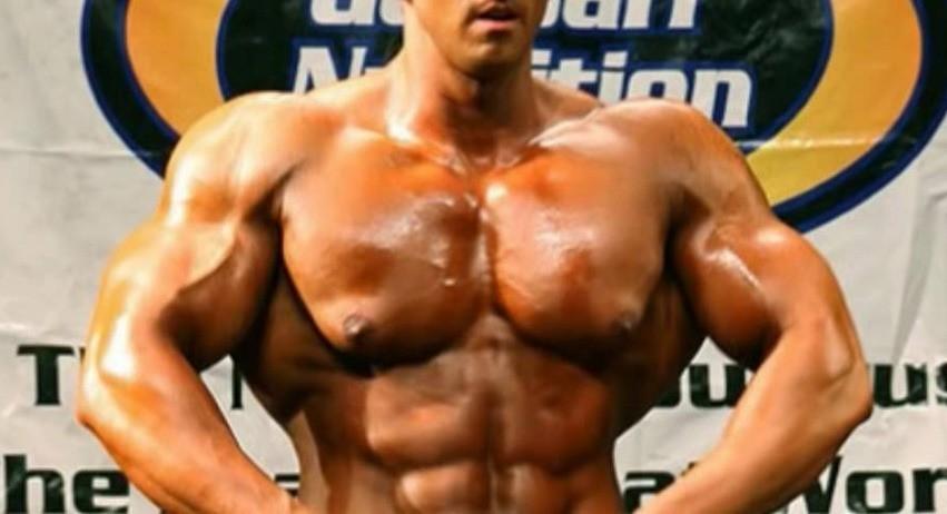 Bodybuilder Gynecomastia
