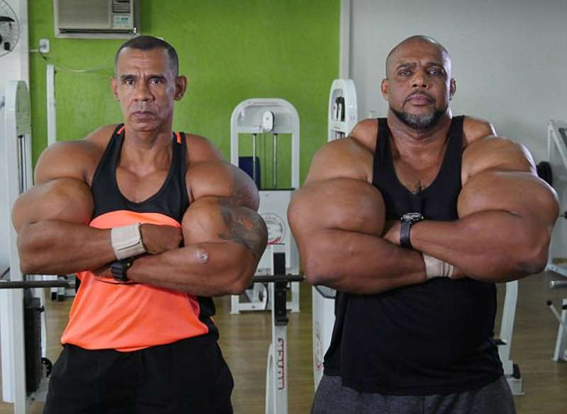 Video Report: Synthol Brothers Inject Themselves With Chemicals To