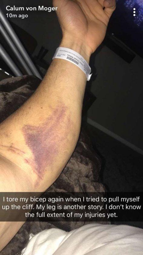 Calum von Moger Injured