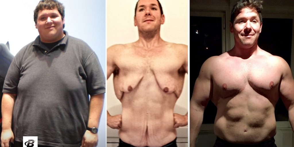 how much weight loss before saggy skin