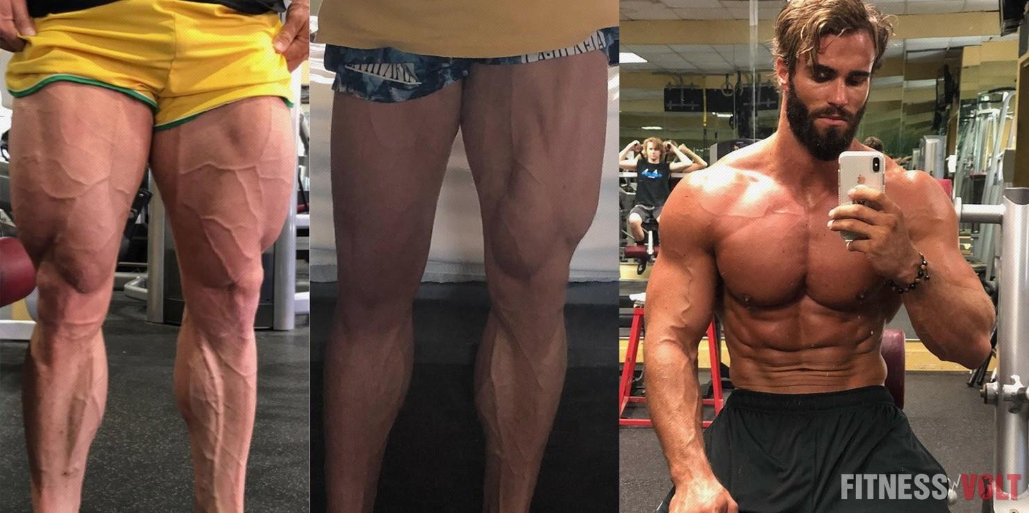 https://fitnessvolt.com/wp-content/uploads/2018/08/Calum-Surgery.jpg