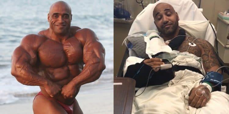 Dennis James Surgery