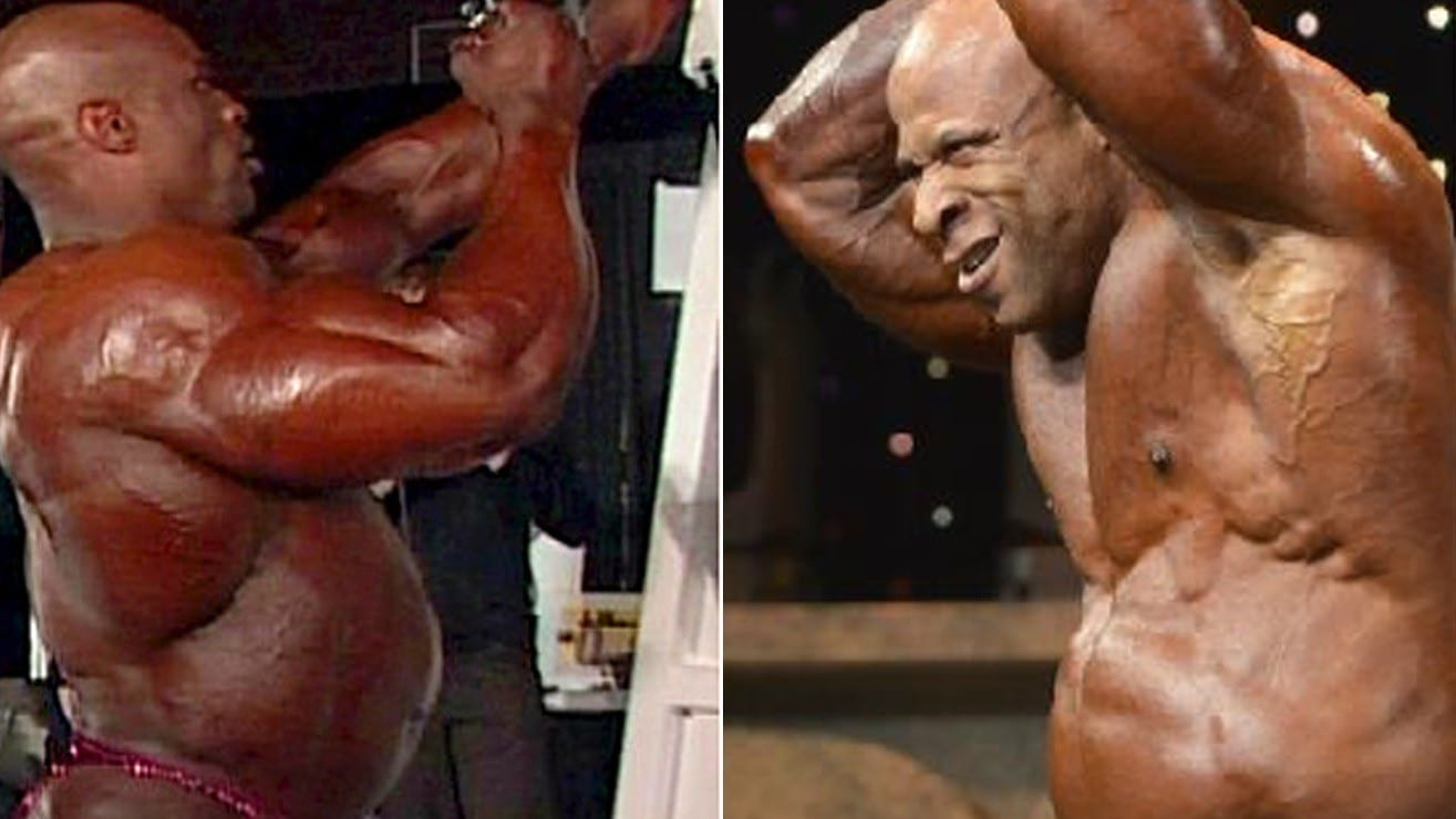 All About The Bubble Gut – Why Pro-Bodybuilders Get It