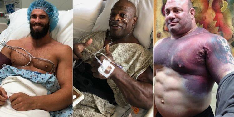 Bodybuilding Injuries