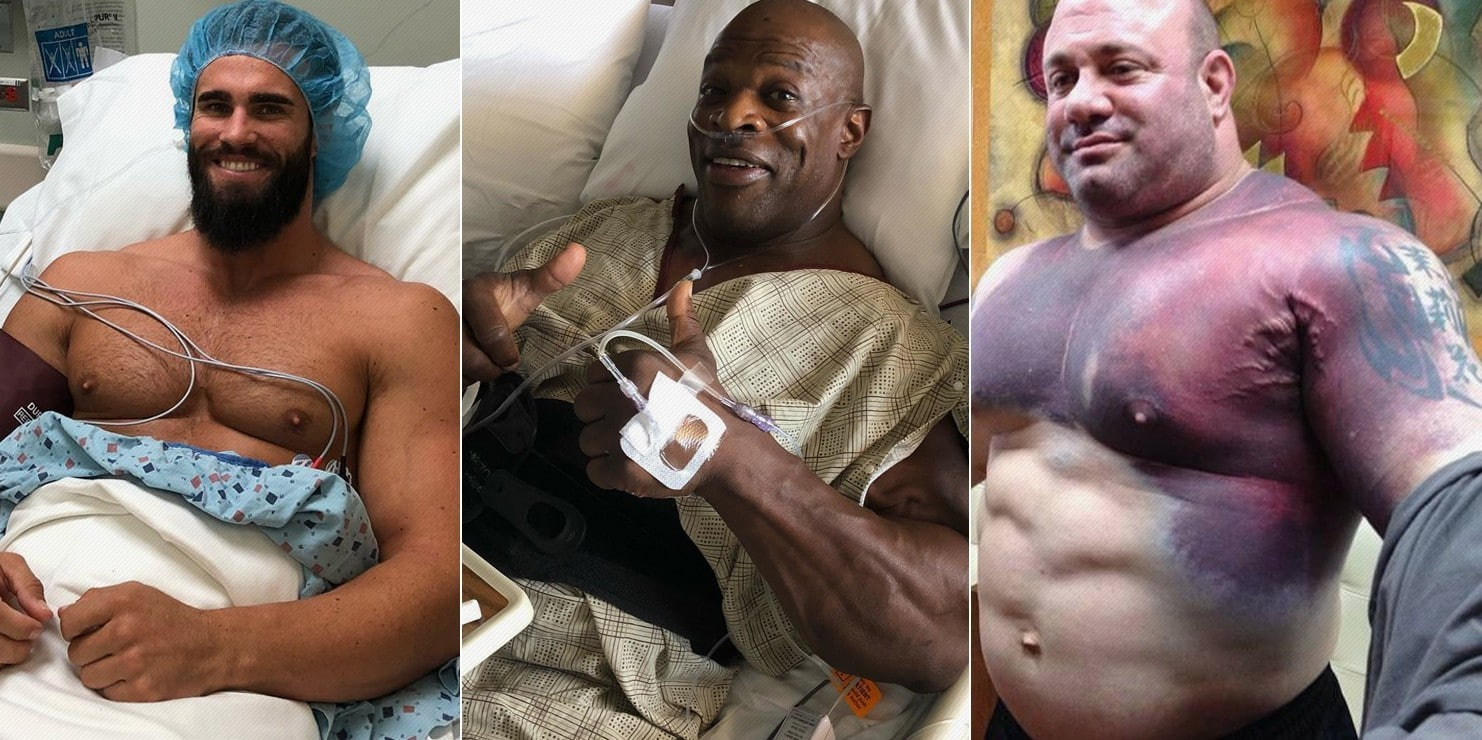 The Five Worst Bodybuilding Injuries Ever – Fitness Volt