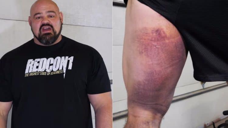 Brian Shaw Hamstring Injury