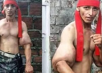Russian Teen Shows Insane Amount Of Synthol In His Arms – Fitness Volt