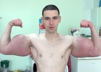 Watch 'Bodybuilder' Synthol Freak Valdir Segato,