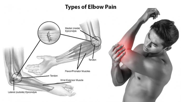 Types of Elbow Pain