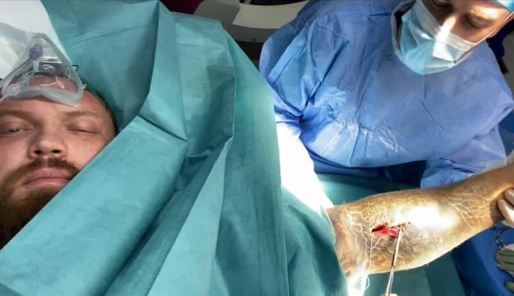 Eddi Hall Bicep Surgery